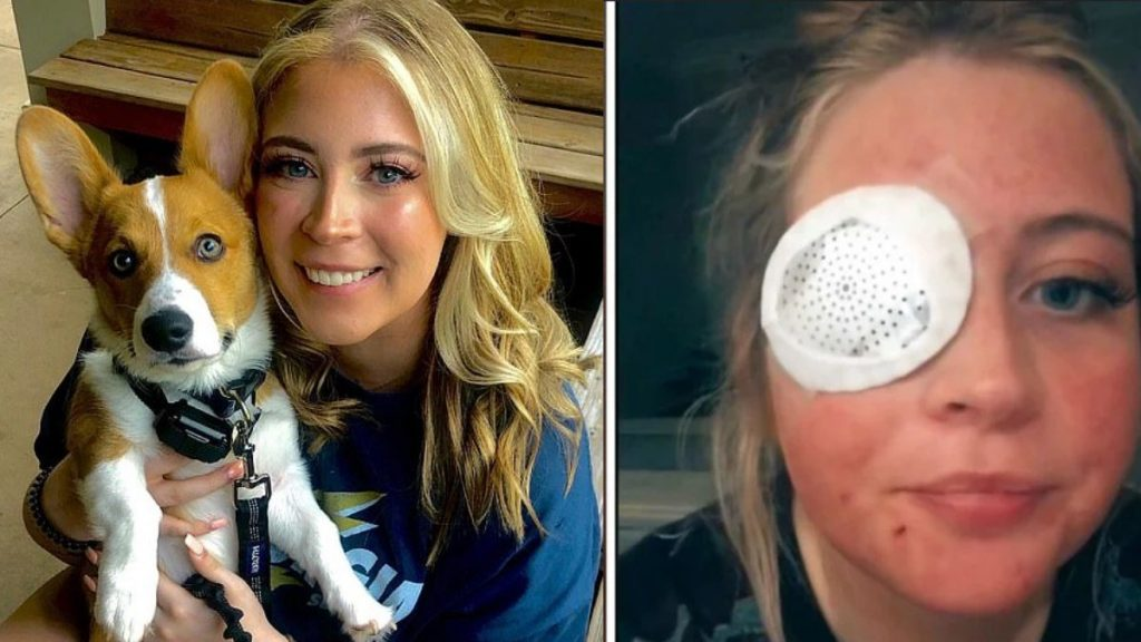 Dog removes woman's eyelid after attack in US;  Pictures are powerful    Unusual world