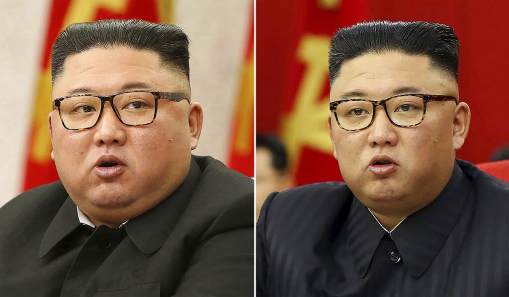 Pictures of Kim Skinner's intrigue analysts.  The North Korean dictator's health status is a frequent target of speculation |  Scientist